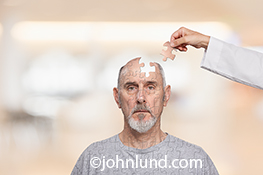 A senior man wears a confused look and is missing a puzzle shaped piece of his head, a piece that is being held just above him by a hand and arm wearing a white lab coat. This is an image about Memory issues and Alzheimer's.