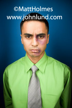 Picture of a beat-up, bruised, and angry hispanic businessman. The man has a black eye, cuts and bruises on his nose, and a cut and swollen lip.  The man looks really pissed off about something.