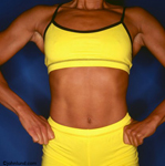 Woman's Torso. A strong woman body builder's torso. The woman is wearing a yellow two piece outfit with black trim. The well muscled woman has her hands on her hips and is facing the camera.